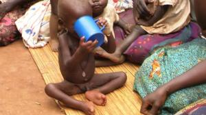 A malnourished child at the Health Centre